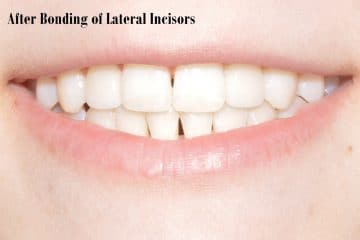 After bonding of lateral incisors