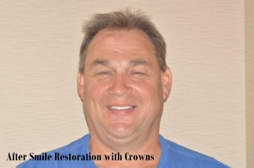 after smile restoration with crowns